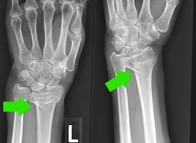 case study fractured hand The american jury: a case study which included bruises, chipped teeth, and fractured vertebra in his neck written on the left hand is the.